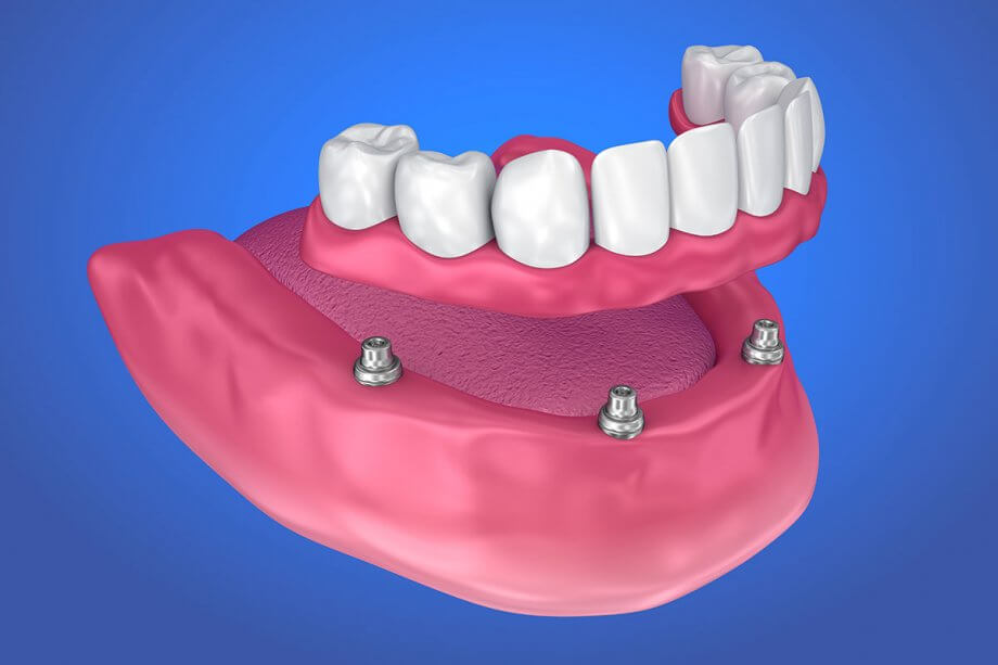 The Benefits of Dental Implant Supported Dentures
