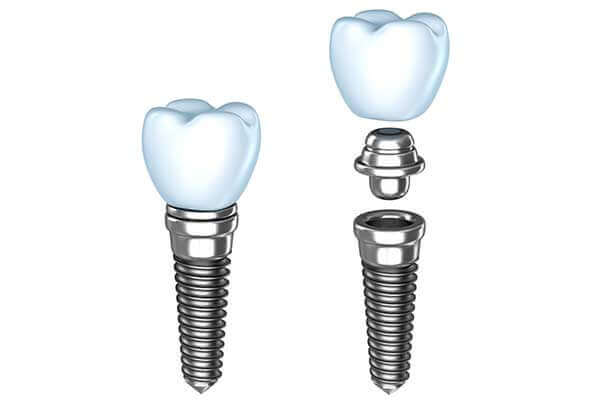 Single Dental Implants in South County