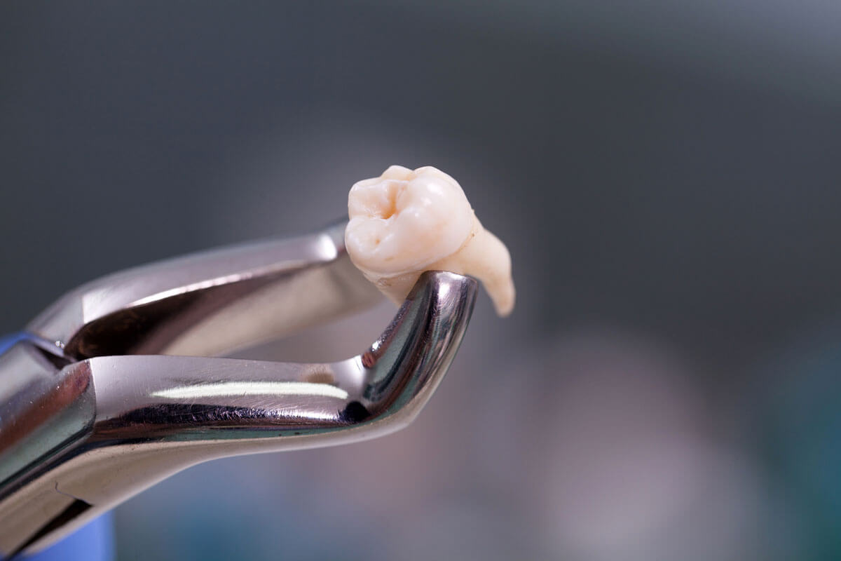 What To Expect After Wisdom Tooth Extraction Arrowhead Dental