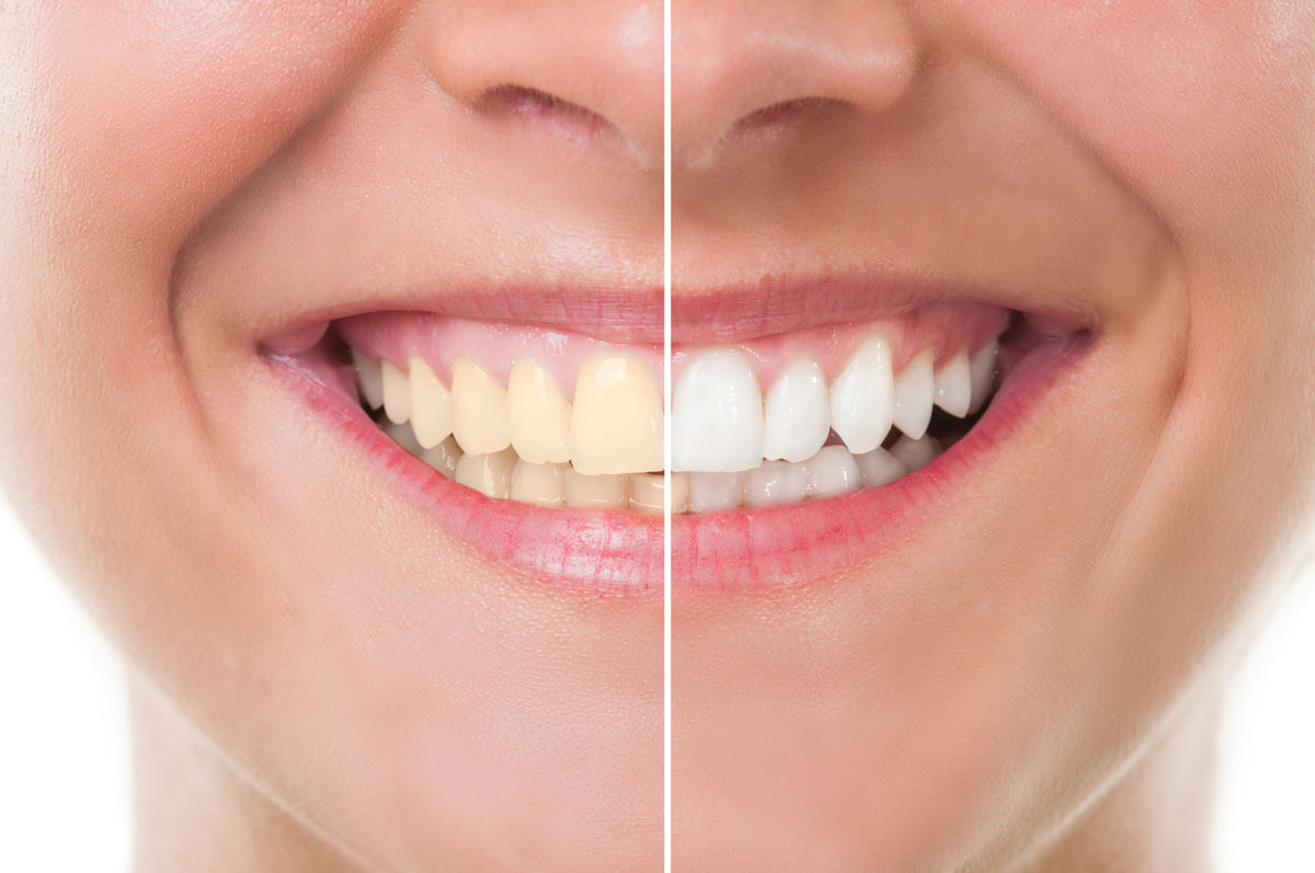 Before & After Teeth Whitening in Charlestown